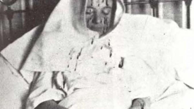 Therese Neumann Stigmata